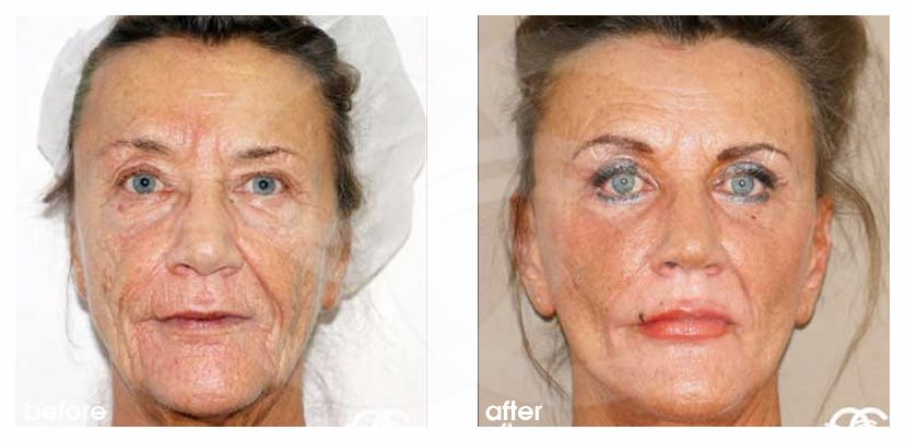 Facelift Before After PAVE-Facelift with Lipografting Photo frontal Ocean Clinic Marbella Spain