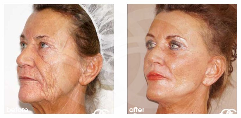 Lifting du Visage 10 ante/post-op lateral