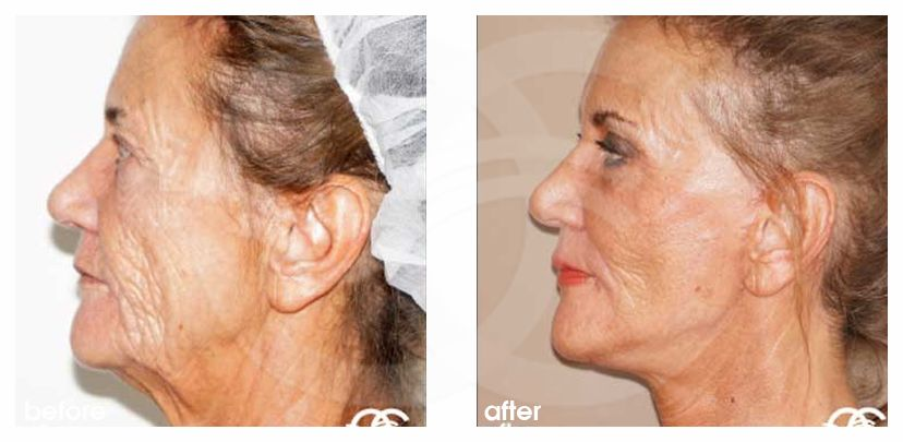 Face and Neck Lift PAVE-Facelift before after perfil