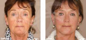 Lifting Facial Ritidectomía Antes y Después Foto Ocean Clinic caso 11 Marbella Málaga