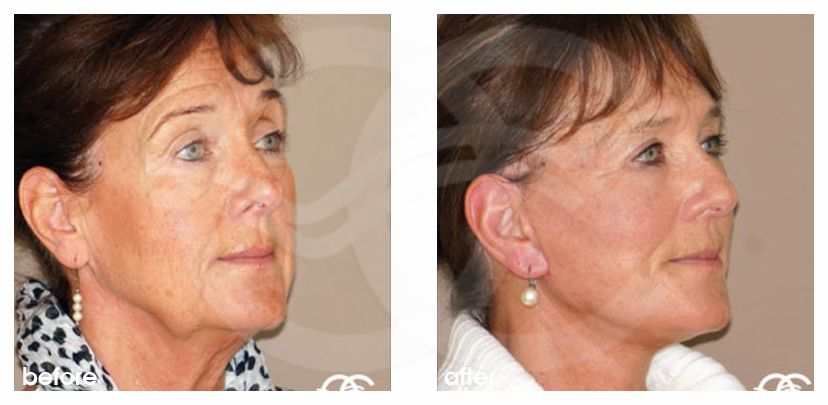 Facelift Before After PAVE-Facelift with Lipografting Photo side Ocean Clinic Marbella Spain