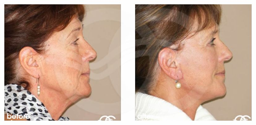 Facelift Before After PAVE-Facelift with Lipografting Photo profile Ocean Clinic Marbella Spain