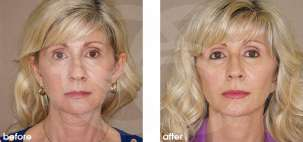 Facelift Surgery Rhytidectomy Before After Photo Ocean Clinic case 12 Marbella