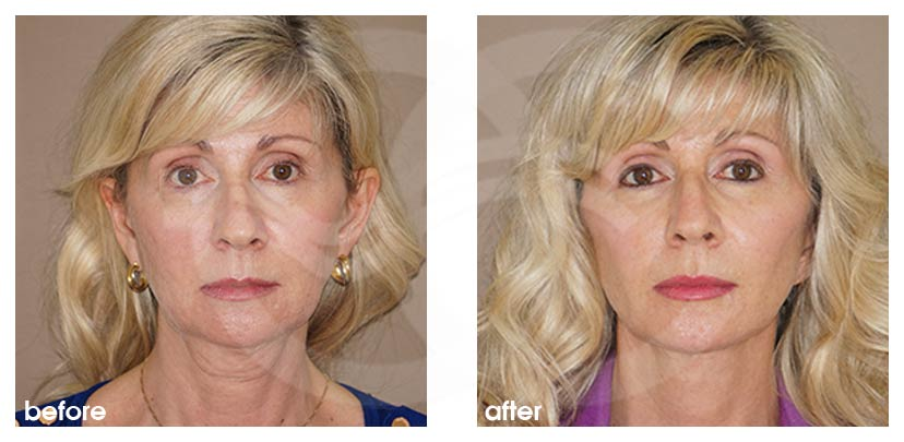 Facelift with Fat Transfer (Lipografting) Before After Photo frontal Ocean Clinic Marbella Spain
