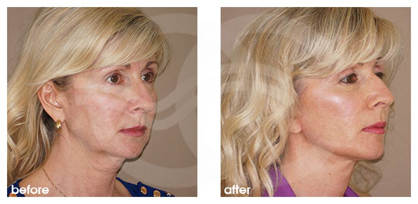 Facelift with Fat Transfer (Lipografting) Before After Photo side Ocean Clinic Marbella Spain