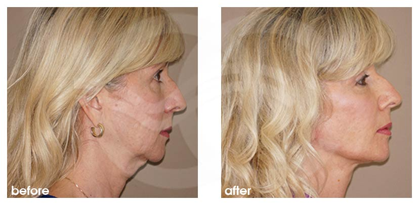 Facelift with Fat Transfer (Lipografting) Before After Photo profile Ocean Clinic Marbella Spain