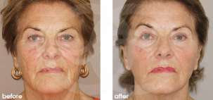 Facelift Surgery Rhytidectomy Before After Photo Ocean Clinic case 13 Marbella