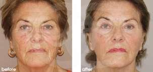 Lifting Facial Ritidectomía Antes y Después Foto Ocean Clinic caso 13 Marbella Málaga