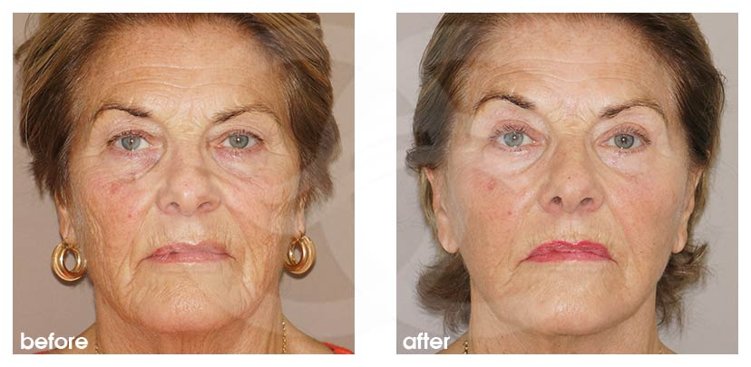 Facelift with Lipografting (Fat Transfer) Before After Photo frontal Ocean Clinic Marbella Spain