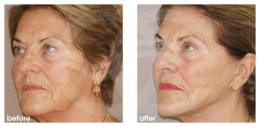 Facelift with Lipografting (Fat Transfer) Before After Photo side Ocean Clinic Marbella Spain