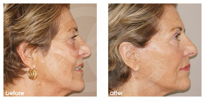 Facelift with Lipografting (Fat Transfer) Before After Photo profile Ocean Clinic Marbella Spain