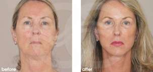 Facelift Surgery Rhytidectomy Before After Photo Ocean Clinic case 14 Marbella