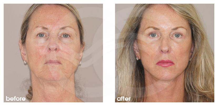 Facelift Before After PAVE-Facelift with Fat Transfer Photo frontal Ocean Clinic Marbella Spain