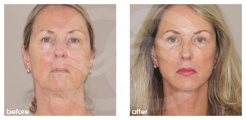 Lifting Facial Antes Después Estiramiento Facial Foto frente Ocean Clinic Marbella Málaga