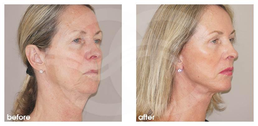 Lifting Facial Antes Después Estiramiento Facial Foto lado Ocean Clinic Marbella Málaga