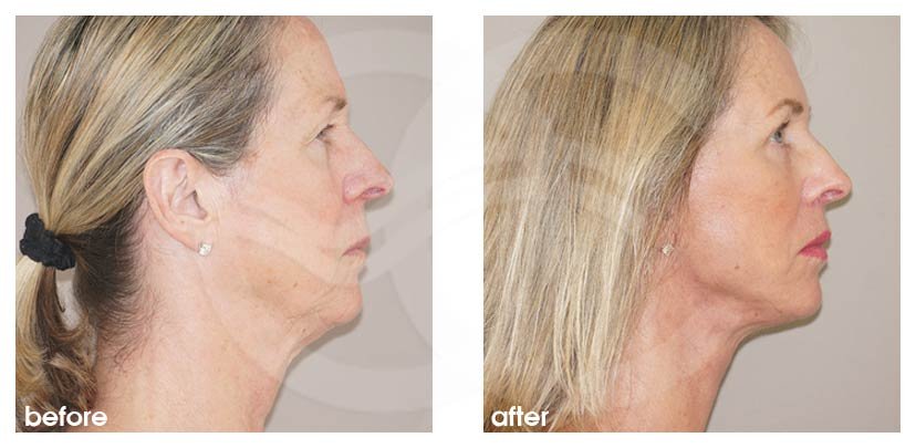Facelift Before After PAVE-Facelift with Fat Transfer Photo profile Ocean Clinic Marbella Spain