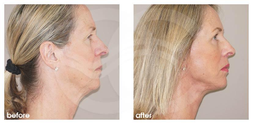 Lifting Facial Antes Después Estiramiento Facial Foto perfil Ocean Clinic Marbella Málaga