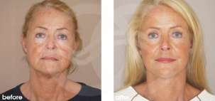 Facelift Surgery Rhytidectomy Before After Photo Ocean Clinic case 15 Marbella Spain