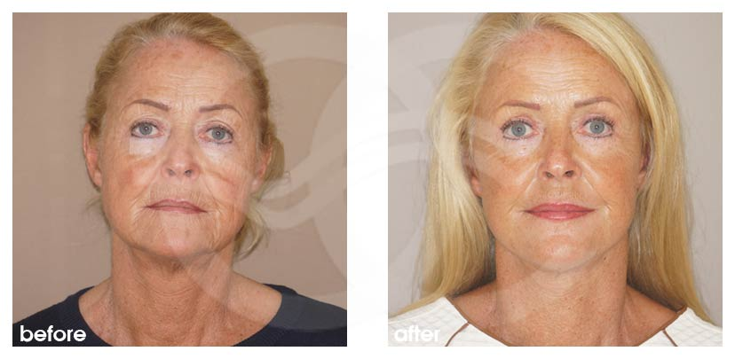 Facelift Before After Rhytidectomy. Well done facelift. Photo frontal Ocean Clinic Marbella Spain