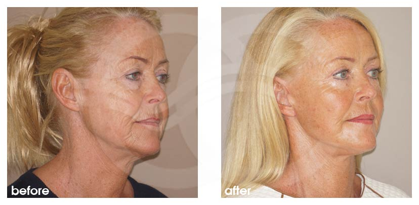 Facelift Before After Rhytidectomy. Well done facelift. Photo side Ocean Clinic Marbella Spain