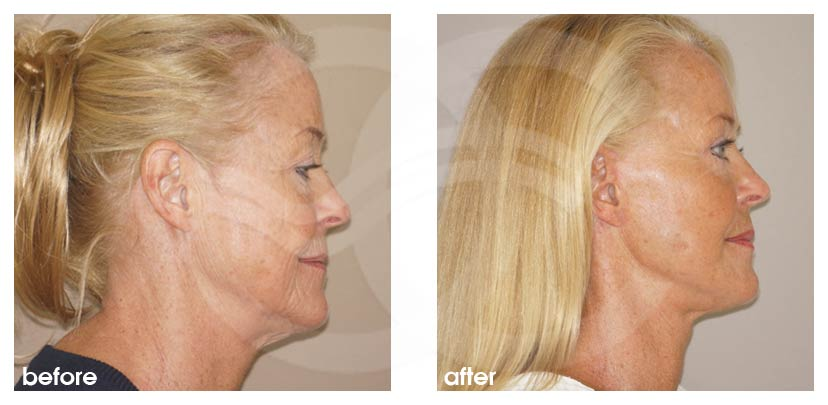 Facelift Before After Rhytidectomy. Well done facelift. Photo profile Ocean Clinic Marbella Spain