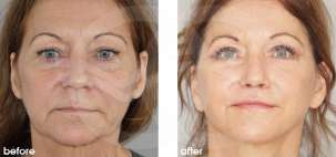 Facelift Surgery Rhytidectomy Before After Photo Ocean Clinic case 16 Marbella Spain