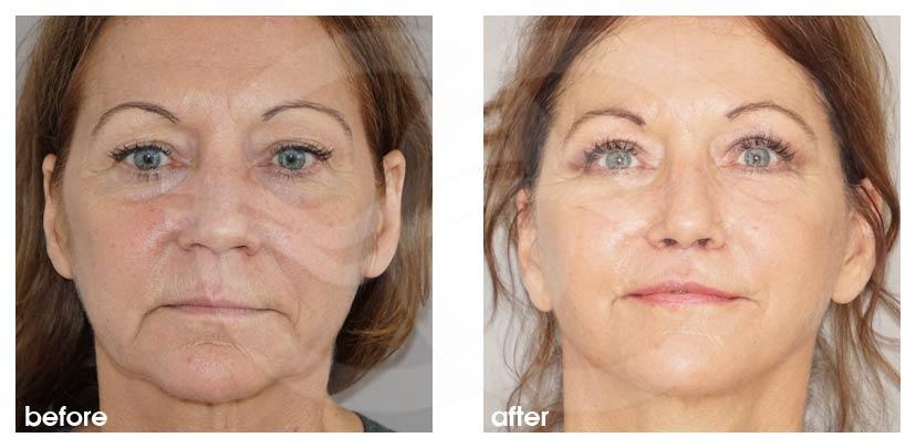 Gesichtsstraffung Vorher Nachher PAVE Facelifting mit Eigenfett Foto vorne. Marbella Ocean Clinic