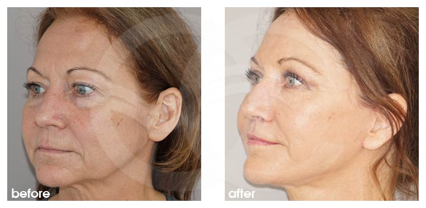 Facelift Before After PAVE-Facelift full with face fat transfer Photo side Ocean Clinic Marbella Spain