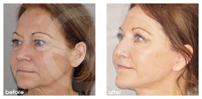 Gesichtsstraffung Vorher Nachher PAVE Facelifting mit Eigenfett Foto seitlich. Marbella Ocean Clinic