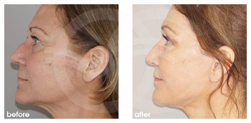 Gesichtsstraffung Vorher Nachher PAVE Facelifting mit Eigenfett Foto profil. Marbella Ocean Clinic