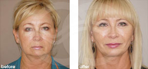 Facelift Surgery Rhytidectomy Before After Photo Ocean Clinic case 17 Marbella Spain