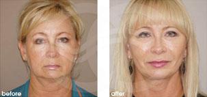Lifting Facial Ritidectomía Antes y Después Foto Ocean Clinic caso 17 Marbella Málaga