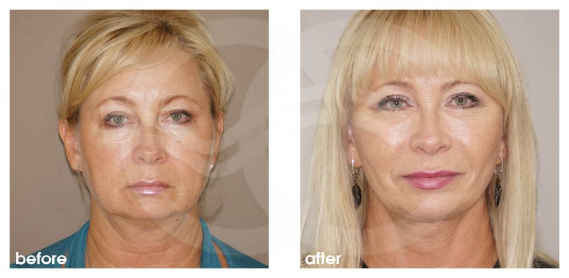 Facelift Surgery Before After Rhytidectomy Photo frontal Ocean Clinic Marbella Spain