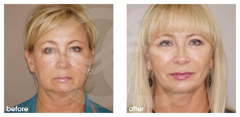 Lifting Facial Antes Después Lifting Estiramiento Facial Foto frente Ocean Clinic Marbella Málaga