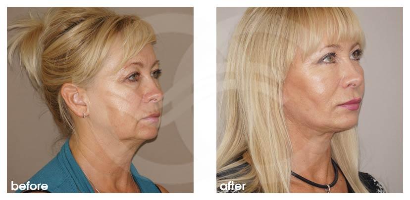 Gesichtsstraffung Vorher Nachher Facelifting gesamtes Gesicht Foto seitlich. Marbella Ocean Clinic