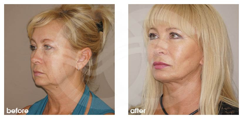 facelift surgery before after rhytidectomy photo profile ocean clinic marbella spain