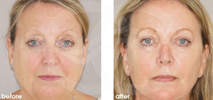 Facelift Surgery Rhytidectomy Before After Photo Ocean Clinic case 18 Marbella
