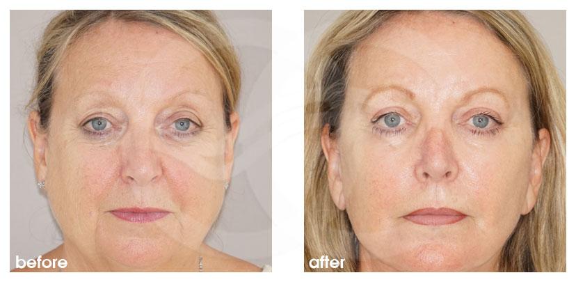 Gesichtsstraffung Vorher Nachher Facelifting mit Eigenfett-Transfer Foto vorne. Marbella Ocean Clinic