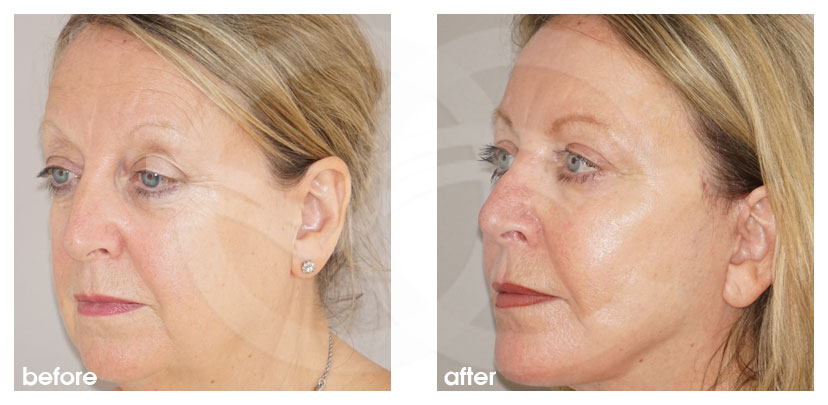 Gesichtsstraffung Vorher Nachher Facelifting mit Eigenfett-Transfer Foto seitlich. Marbella Ocean Clinic