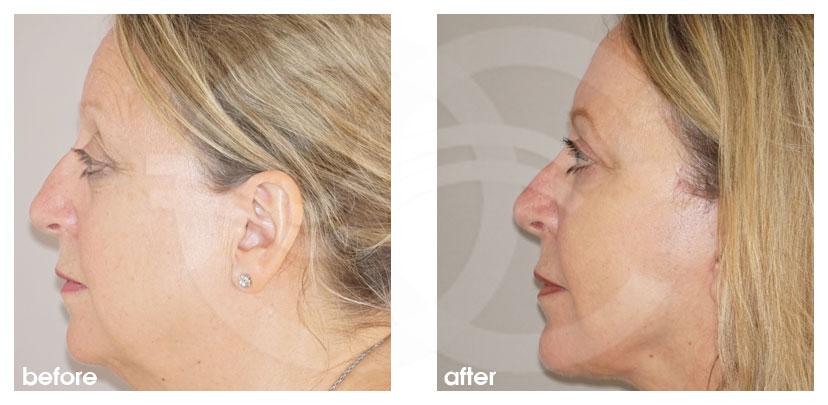Gesichtsstraffung Vorher Nachher Facelifting mit Eigenfett-Transfer Foto profil. Marbella Ocean Clinic