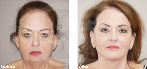 Facelift Surgery Rhytidectomy Before After Photo Ocean Clinic case 19 Marbella