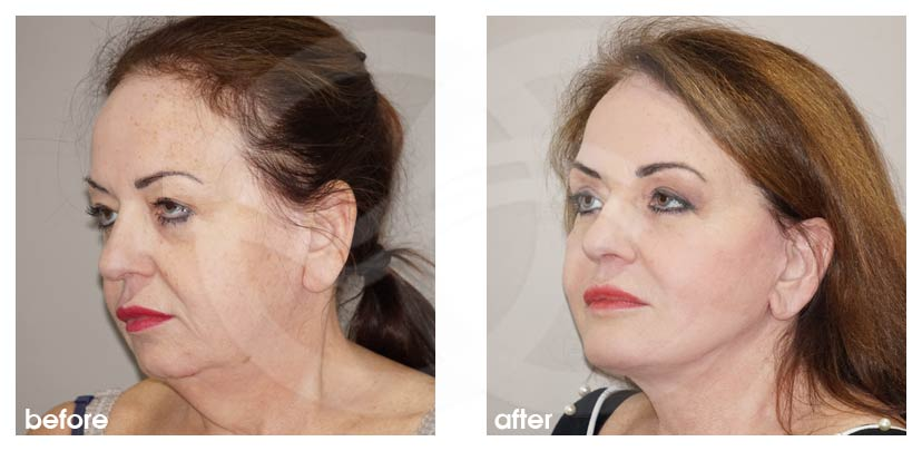 FACELIFT Surgery Before and After Chin Implant Marbella Ocean Clinic