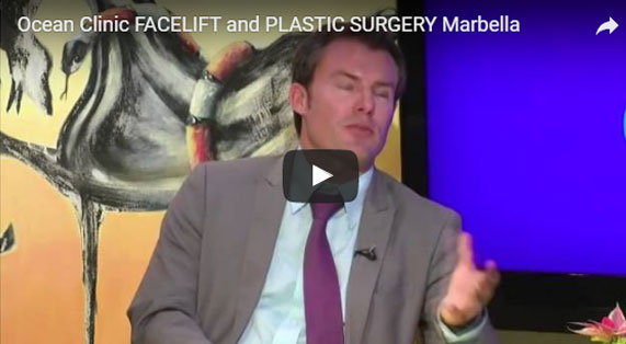 Facelift FAQ Video Ocean Clinic Marbella Spain