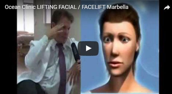 Gesichtsstraffung Methoden, Ergebnisse und Risiken Video. Ocean Clinic Marbella