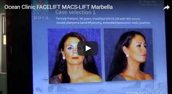 Gesichtsstraffung Facelifting MACS-Lift Video. Ocean Clinic Marbella