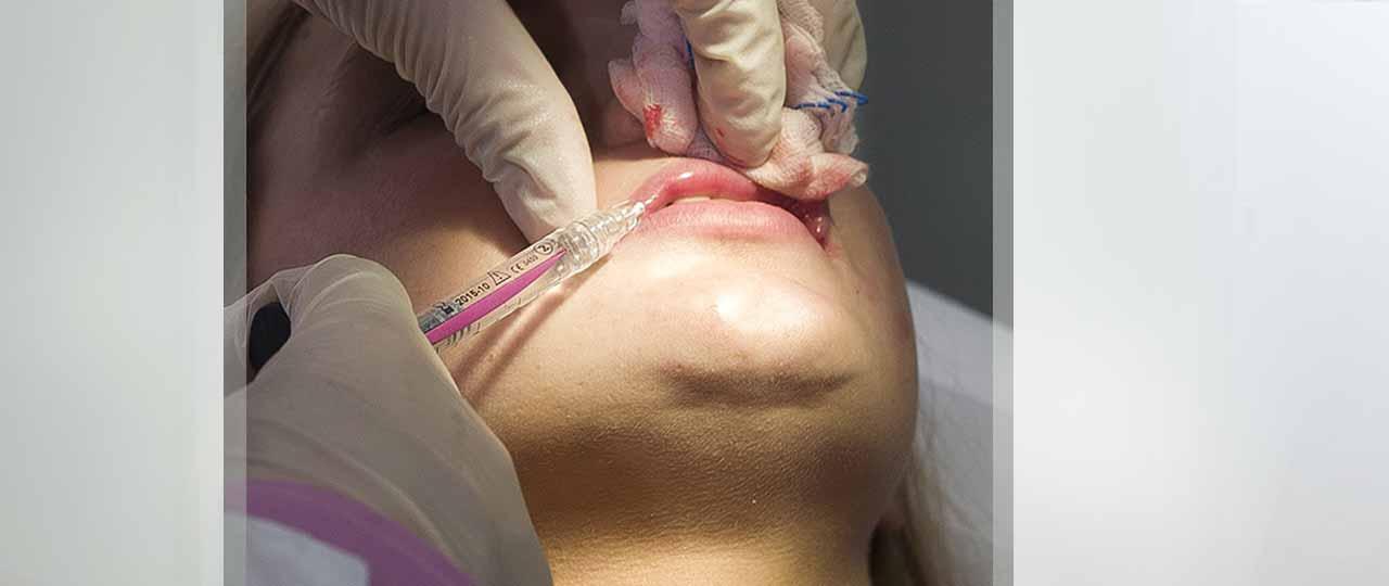 Injections de Comblement Ocean Clinic Marbella Espagne