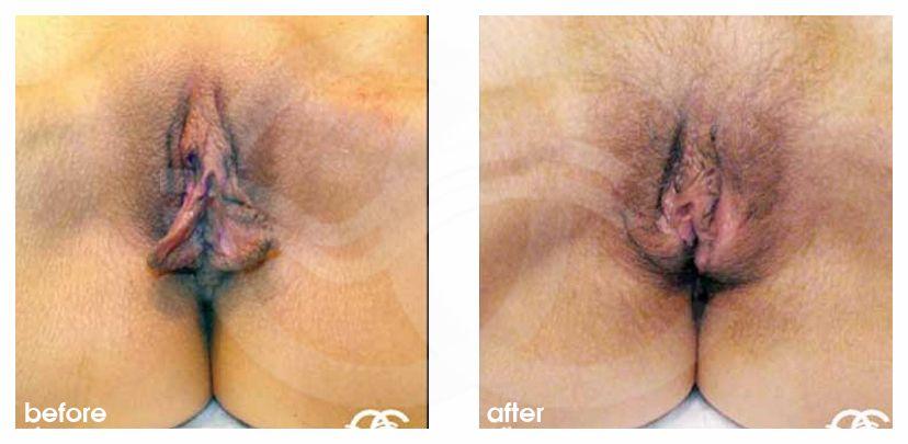 Пластика половых губ Марбелья Испания Ocean Clinic