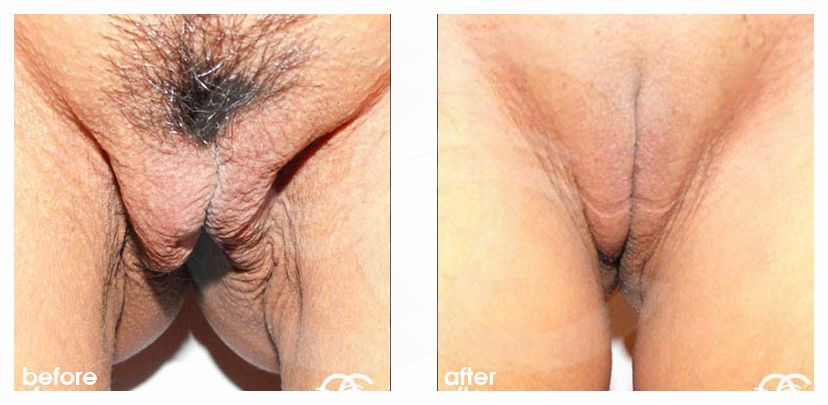 Labiaplasty Before After Photo Ocean Clinic Marbella Spain