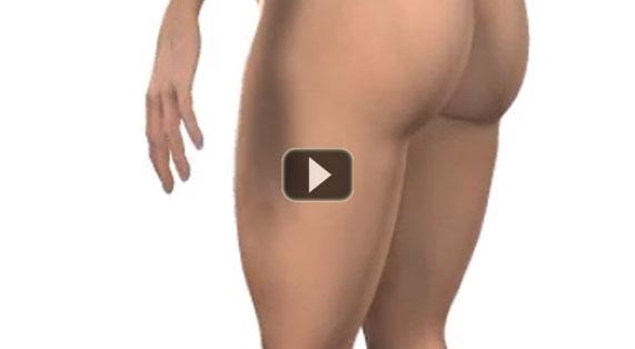 Liposuction Video Lipoplasty Marbella Ocean Clinic