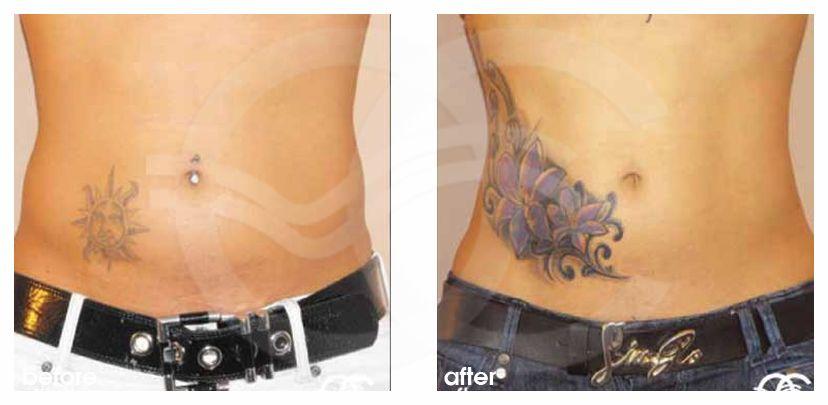 Liposuction Ocean Clinic Marbella Spain